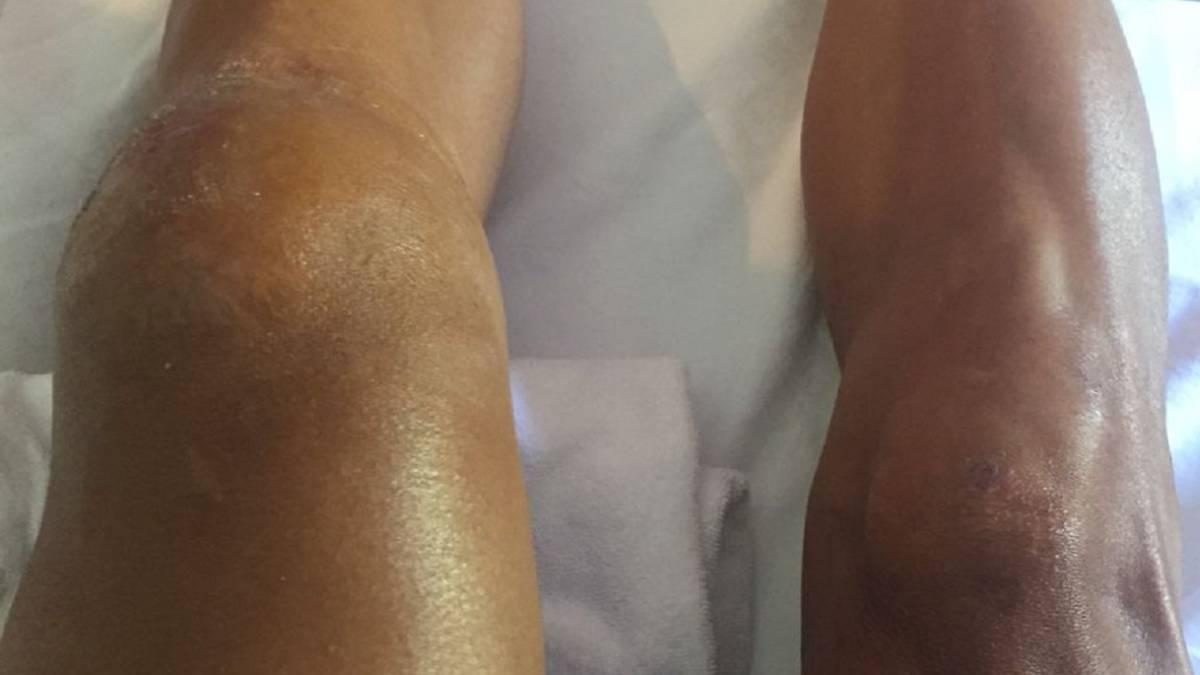 rotura de rodilla por caida