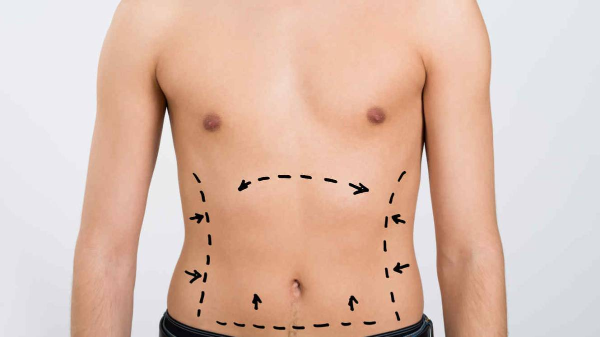 Cirugias esteticas para bajar de peso