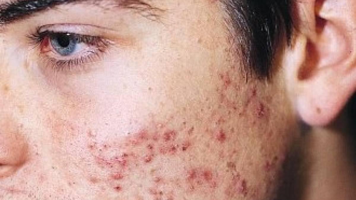 infección debajo de la piel en la cara