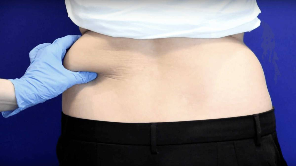 cómo perder grasa del vientre comer sano
