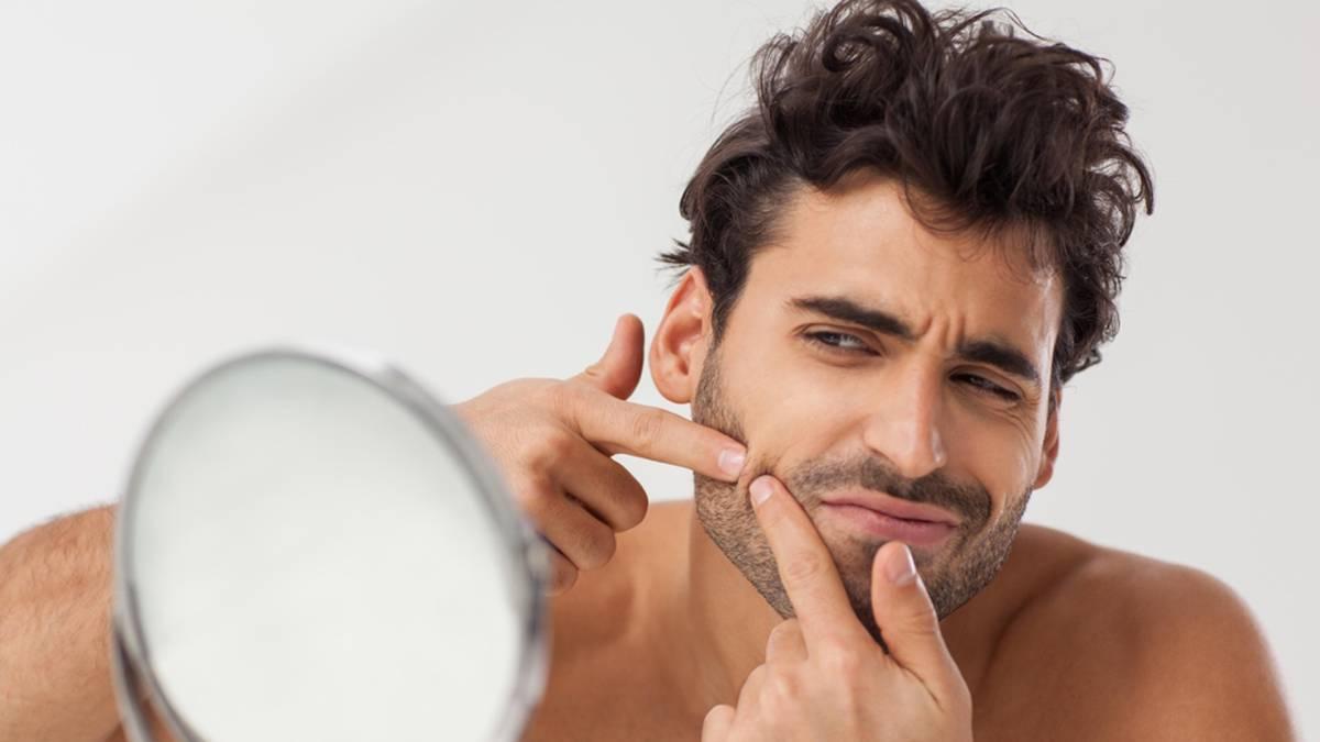 causas del acne en adultos