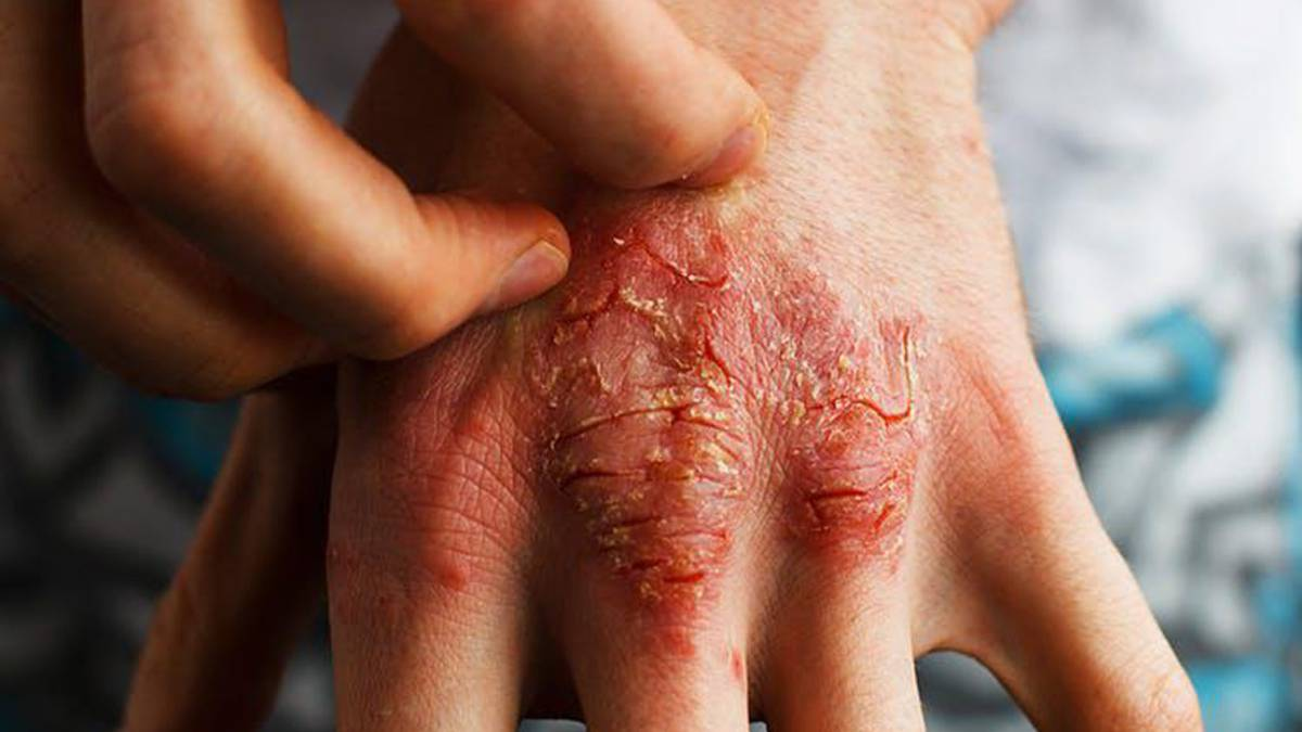 Dermatitis seborreica en los pies