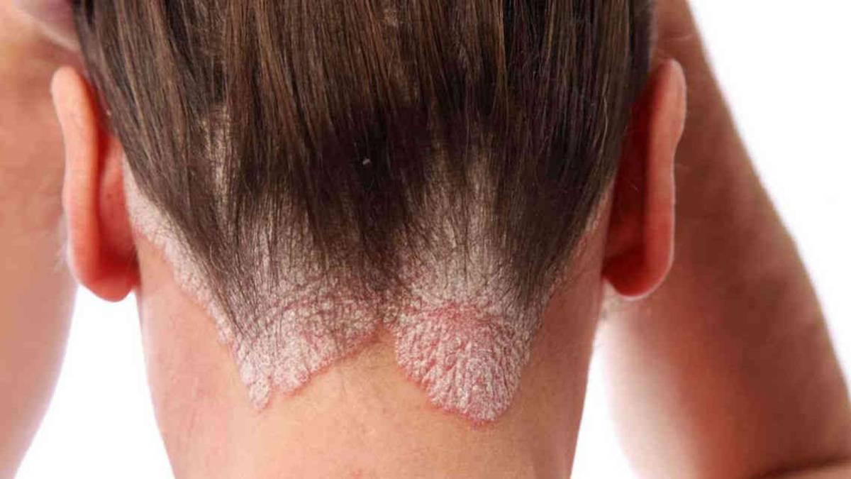 Enfermedades Derivadas Del Estrés Psoriasis Nerviosa As Com